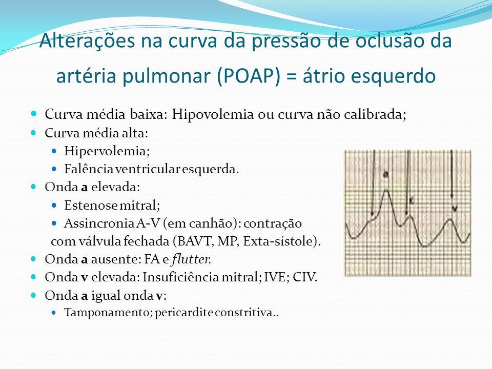  Curva média baixa: Hipovolemia ou curva não calibrada;  Curva média alta:  Hipervolemia;  Falência ventricular esquerda.  Onda a elevada:  Este