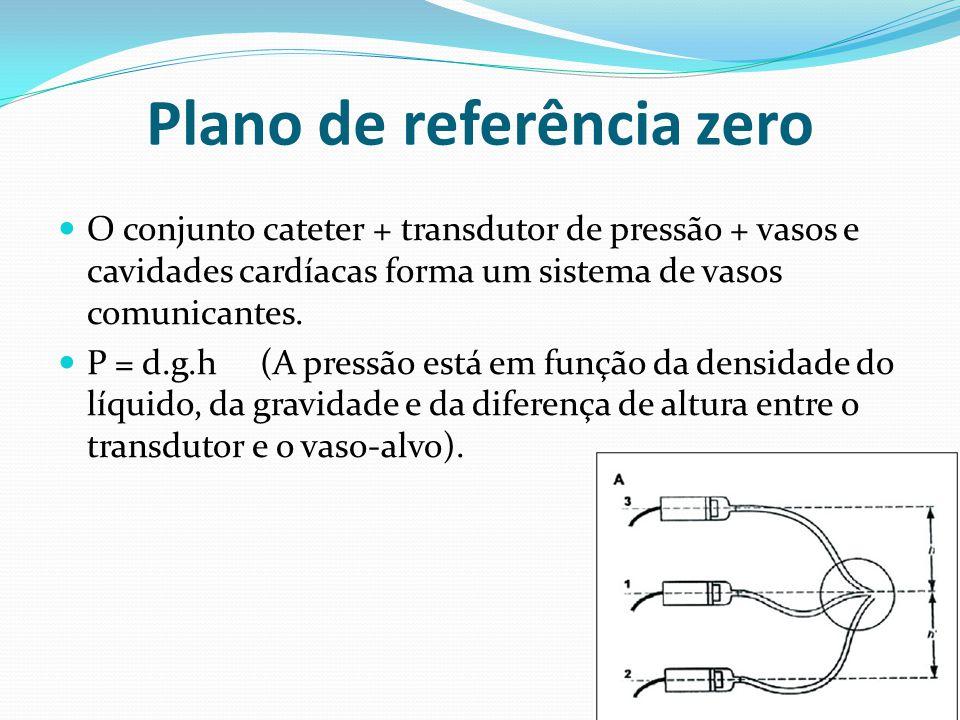 Plano de referência zero  O conjunto cateter + transdutor de pressão + vasos e cavidades cardíacas forma um sistema de vasos comunicantes.  P = d.g.