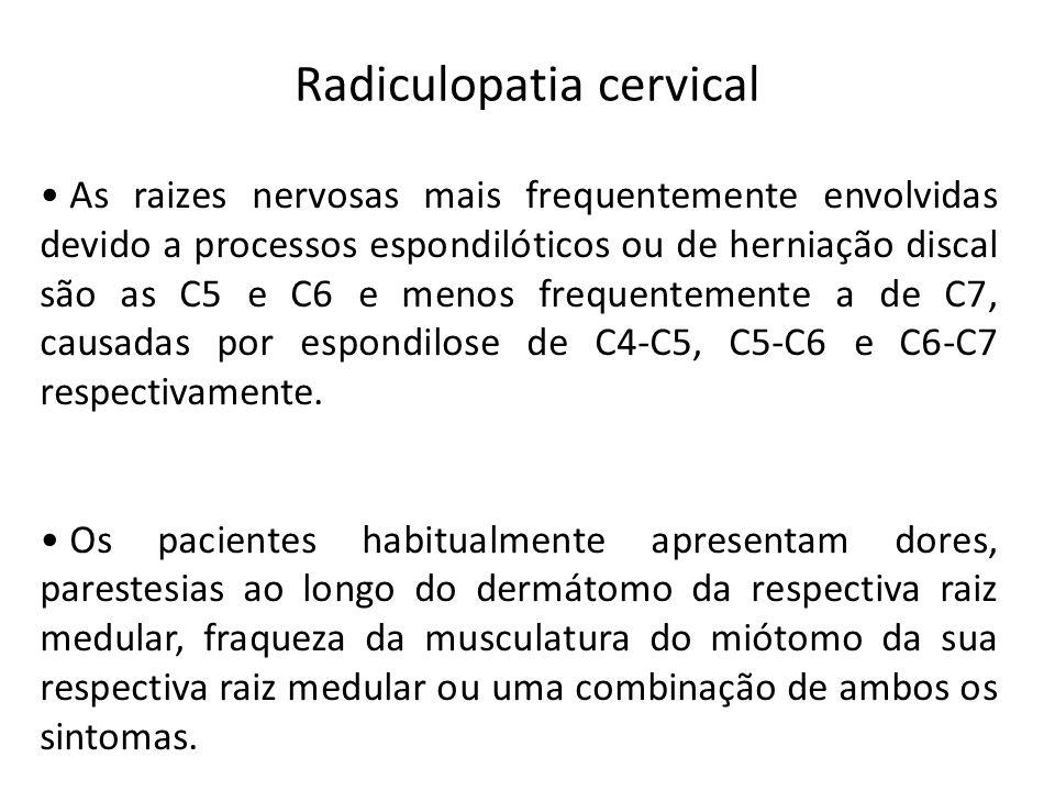 Radiculopatia cervical • As raizes nervosas mais frequentemente envolvidas devido a processos espondilóticos ou de herniação discal são as C5 e C6 e m