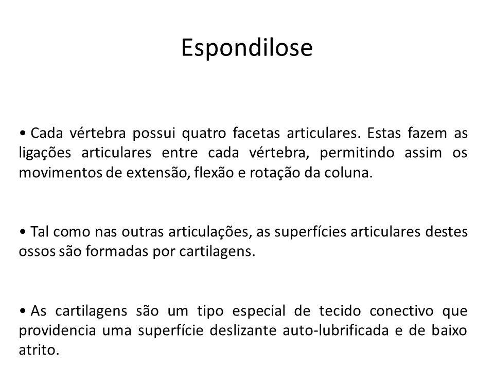 Espondilose • Cada vértebra possui quatro facetas articulares. Estas fazem as ligações articulares entre cada vértebra, permitindo assim os movimentos
