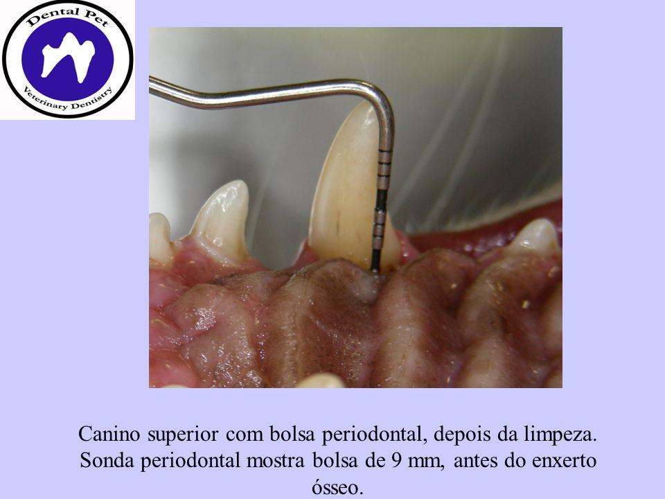 Canino superior com bolsa periodontal, depois da limpeza. Sonda periodontal mostra bolsa de 9 mm, antes do enxerto ósseo.