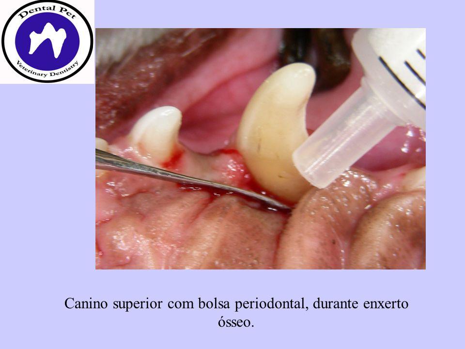 Canino superior com bolsa periodontal, durante enxerto ósseo.