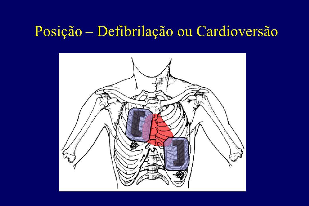 Posição – Defibrilação ou Cardioversão