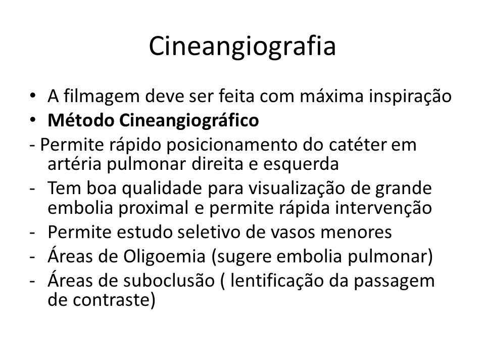 Cineangiografia • A filmagem deve ser feita com máxima inspiração • Método Cineangiográfico - Permite rápido posicionamento do catéter em artéria pulm
