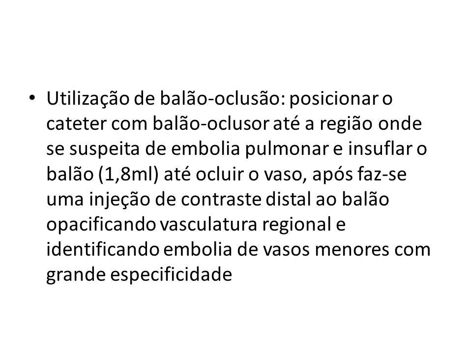• Utilização de balão-oclusão: posicionar o cateter com balão-oclusor até a região onde se suspeita de embolia pulmonar e insuflar o balão (1,8ml) até