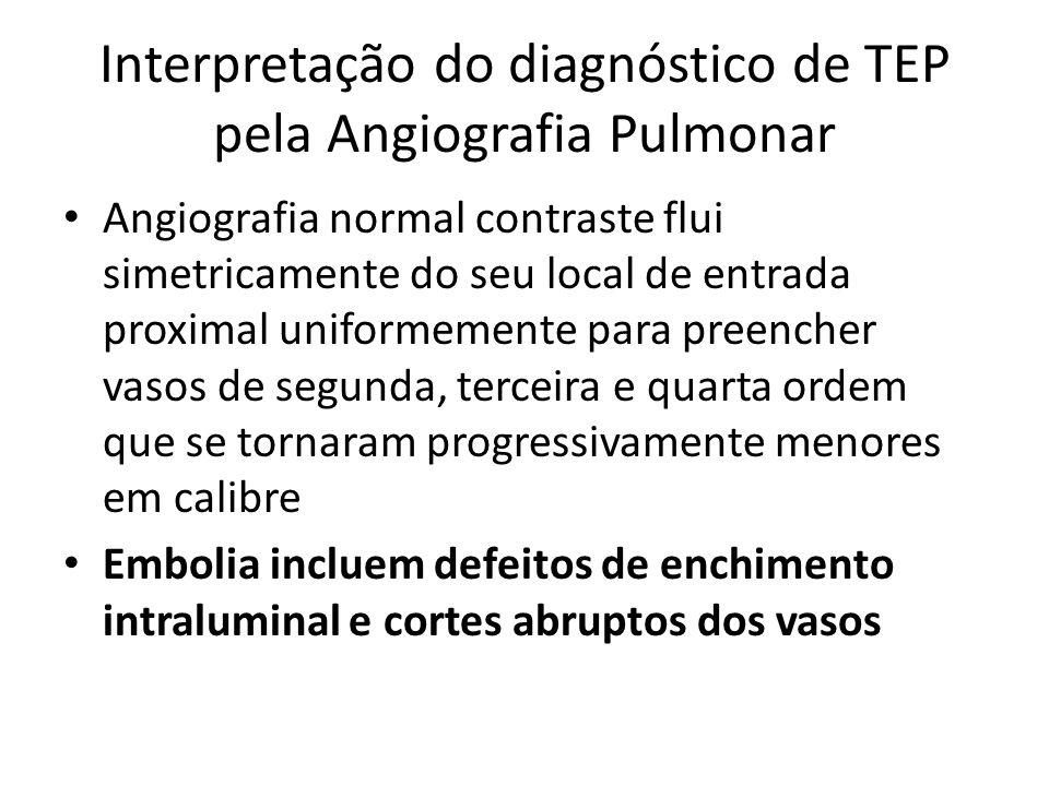 Interpretação do diagnóstico de TEP pela Angiografia Pulmonar • Angiografia normal contraste flui simetricamente do seu local de entrada proximal unif