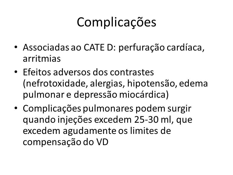 Complicações • Associadas ao CATE D: perfuração cardíaca, arritmias • Efeitos adversos dos contrastes (nefrotoxidade, alergias, hipotensão, edema pulm