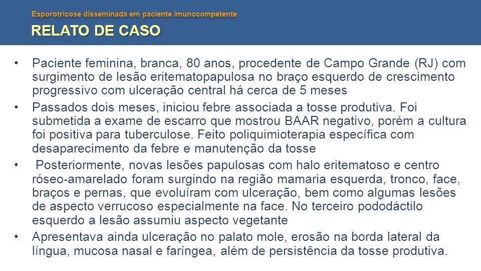 Esporotricose disseminada em paciente imunocompetente RELATO DE CASO •Paciente feminina, branca, 80 anos, procedente de Campo Grande (RJ) com surgimen