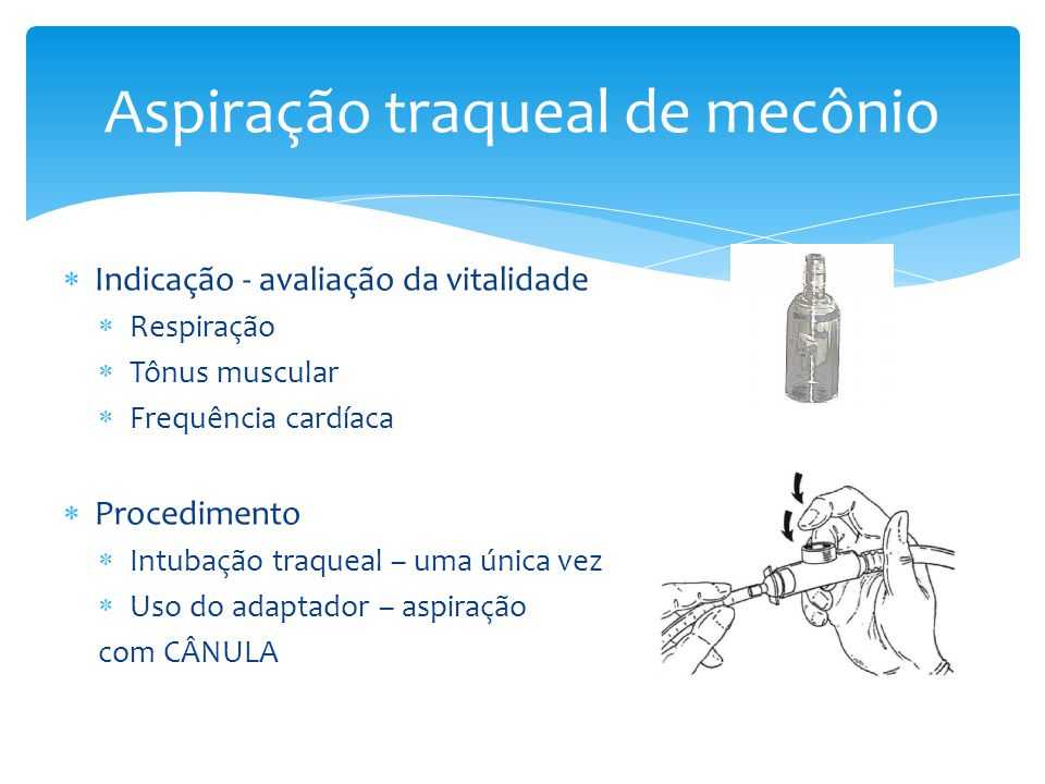  Indicação - avaliação da vitalidade  Respiração  Tônus muscular  Frequência cardíaca  Procedimento  Intubação traqueal – uma única vez  Uso do