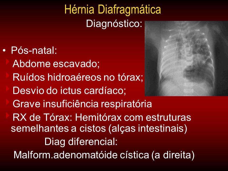 Diagnóstico: •Pós-natal:  Abdome escavado;  Ruídos hidroaéreos no tórax;  Desvio do ictus cardíaco;  Grave insuficiência respiratória  RX de Tóra