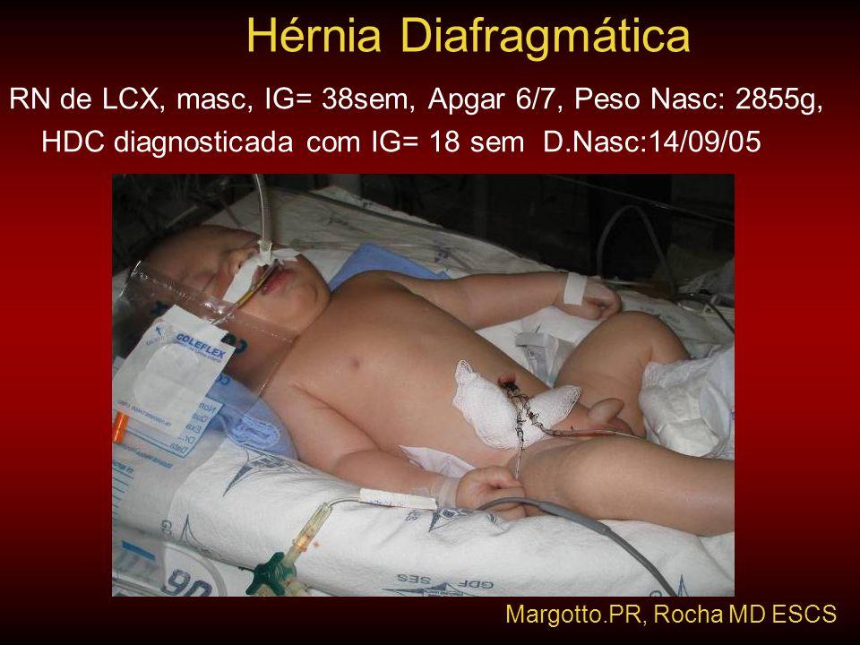 RN de LCX, masc, IG= 38sem, Apgar 6/7, Peso Nasc: 2855g, HDC diagnosticada com IG= 18 sem D.Nasc:14/09/05 Hérnia Diafragmática Margotto.PR, Rocha MD E