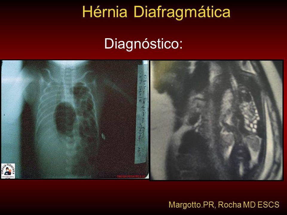 Diagnóstico: Hérnia Diafragmática Margotto.PR, Rocha MD ESCS