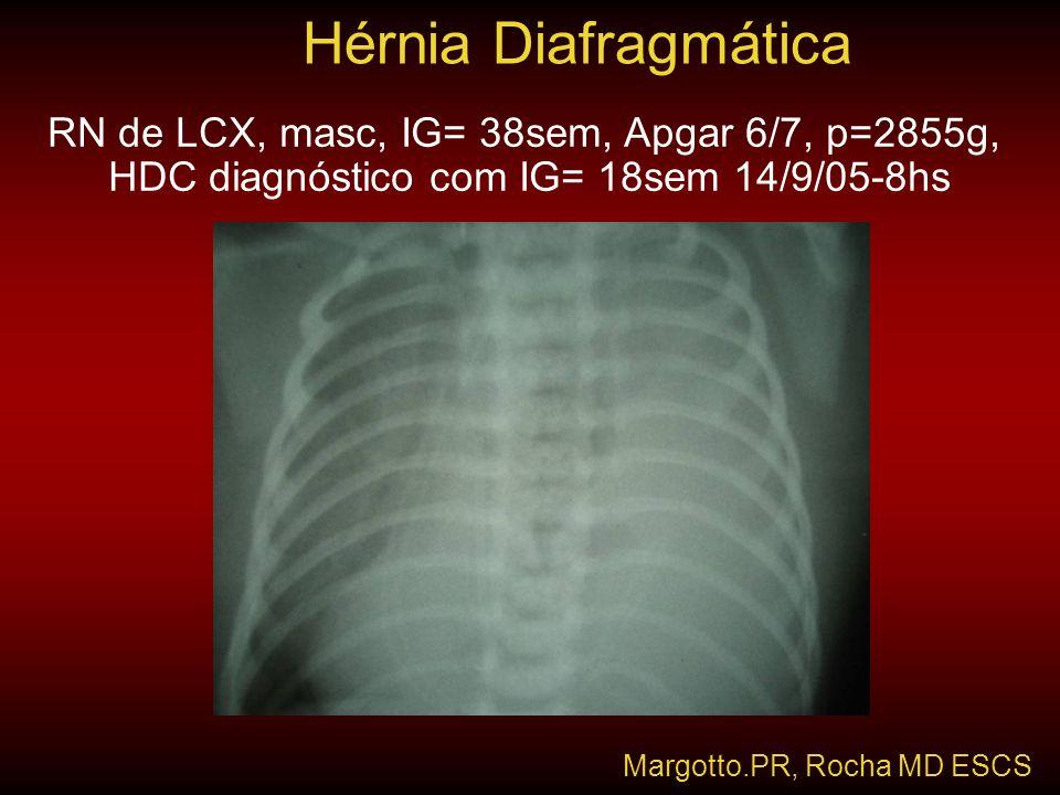 Hérnia Diafragmática Margotto.PR, Rocha MD ESCS RN de LCX, masc, IG= 38sem, Apgar 6/7, p=2855g, HDC diagnóstico com IG= 18sem 14/9/05-8hs