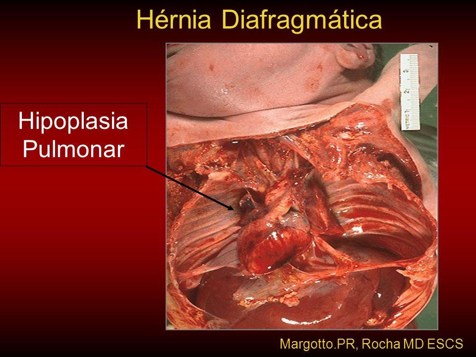 Hipoplasia Pulmonar Hérnia Diafragmática Margotto.PR, Rocha MD ESCS