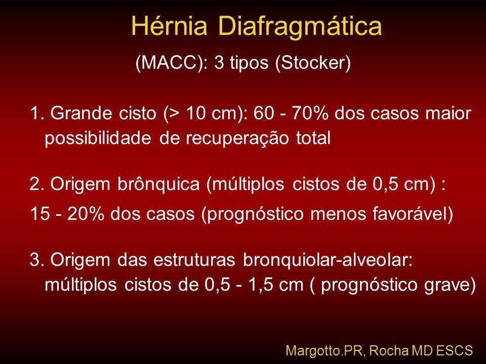 (MACC): 3 tipos (Stocker) 1. Grande cisto (> 10 cm): 60 - 70% dos casos maior possibilidade de recuperação total 2. Origem brônquica (múltiplos cistos