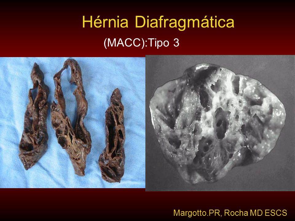 (MACC):Tipo 3 Hérnia Diafragmática Margotto.PR, Rocha MD ESCS