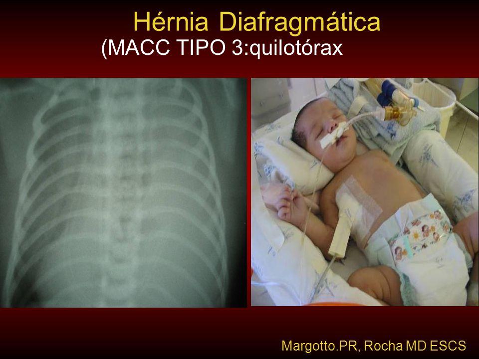 Hérnia Diafragmática (MACC TIPO 3:quilotórax Margotto.PR, Rocha MD ESCS