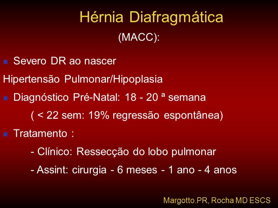 (MACC):  Severo DR ao nascer Hipertensão Pulmonar/Hipoplasia  Diagnóstico Pré-Natal: 18 - 20 ª semana ( < 22 sem: 19% regressão espontânea)  Tratam