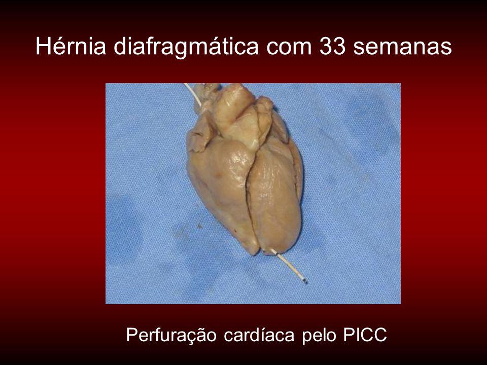 Hérnia diafragmática com 33 semanas Perfuração cardíaca pelo PICC