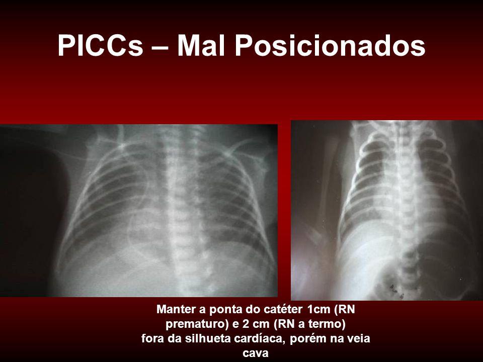 PICCs – Mal Posicionados Manter a ponta do catéter 1cm (RN prematuro) e 2 cm (RN a termo) fora da silhueta cardíaca, porém na veia cava
