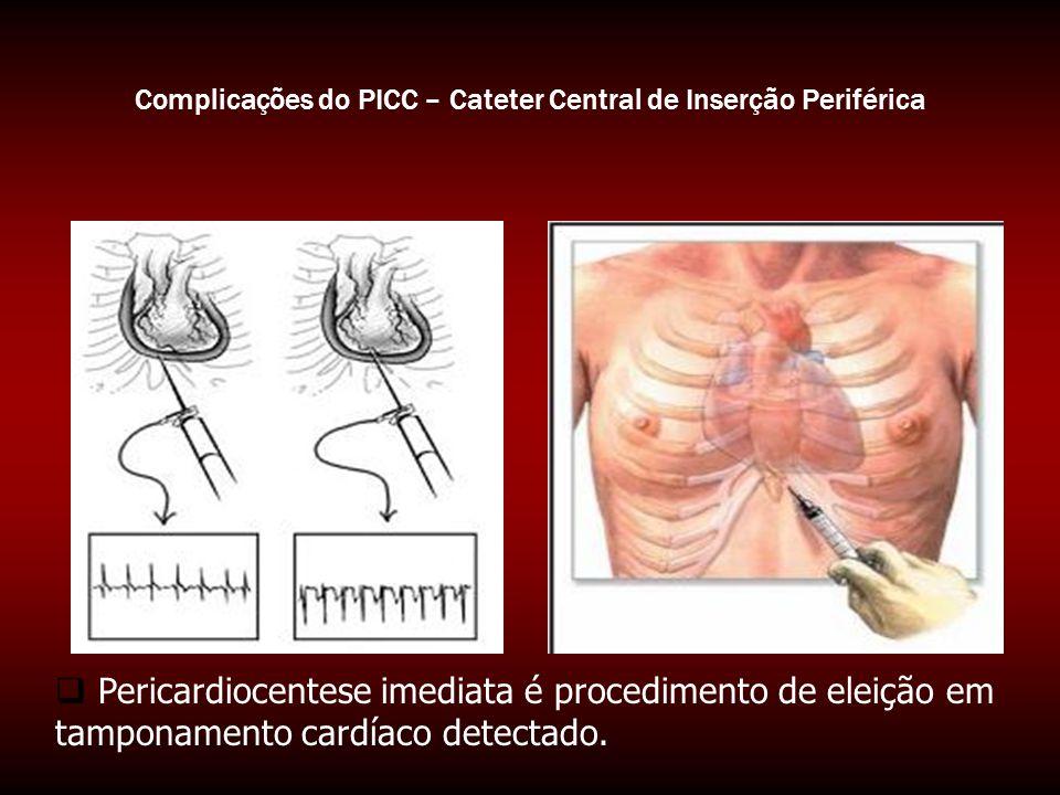 Complicações do PICC – Cateter Central de Inserção Periférica  Pericardiocentese imediata é procedimento de eleição em tamponamento cardíaco detectad