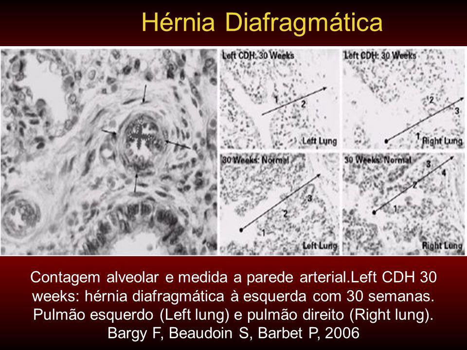 Contagem alveolar e medida a parede arterial.Left CDH 30 weeks: hérnia diafragmática à esquerda com 30 semanas. Pulmão esquerdo (Left lung) e pulmão d