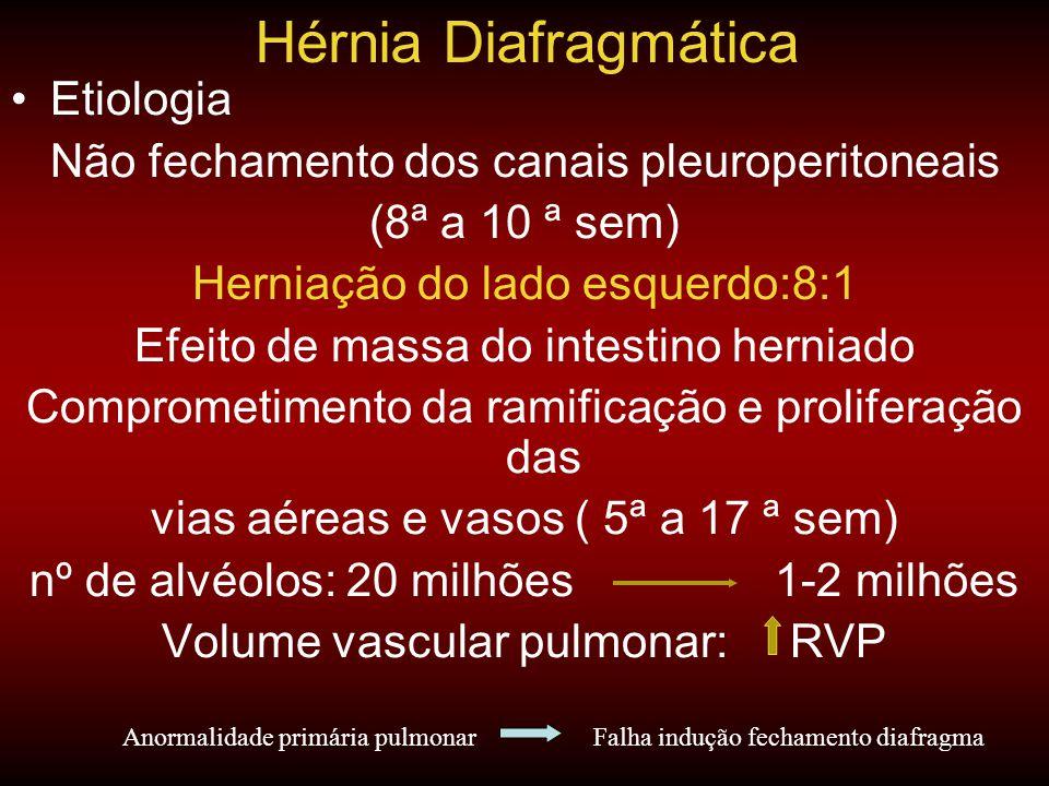 •Etiologia Não fechamento dos canais pleuroperitoneais (8ª a 10 ª sem) Herniação do lado esquerdo:8:1 Efeito de massa do intestino herniado Comprometi