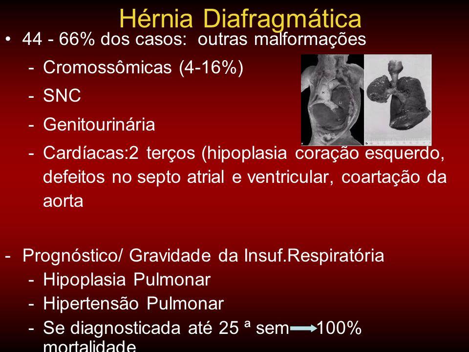 •44 - 66% dos casos: outras malformações -Cromossômicas (4-16%) -SNC -Genitourinária -Cardíacas:2 terços (hipoplasia coração esquerdo, defeitos no sep