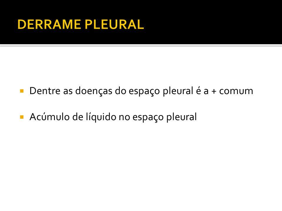  Dentre as doenças do espaço pleural é a + comum  Acúmulo de líquido no espaço pleural