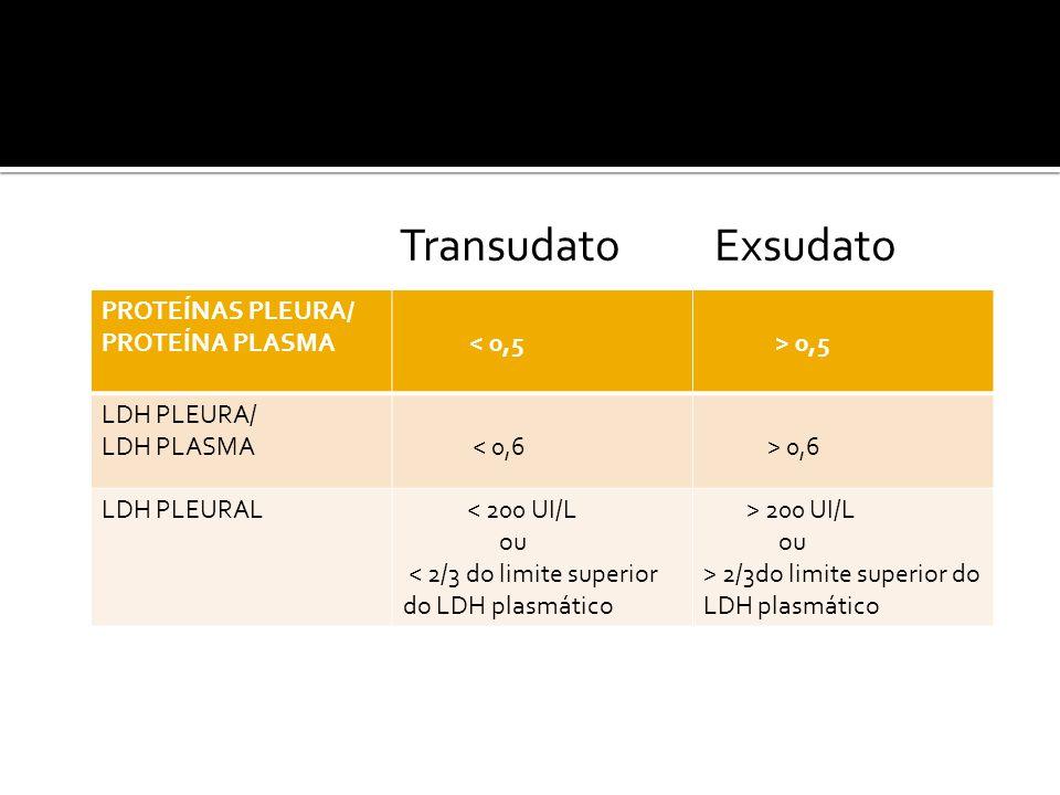 Transudato Exsudato PROTEÍNAS PLEURA/ PROTEÍNA PLASMA < 0,5 > 0,5 LDH PLEURA/ LDH PLASMA < 0,6 > 0,6 LDH PLEURAL < 200 UI/L ou < 2/3 do limite superior do LDH plasmático > 200 UI/L ou > 2/3do limite superior do LDH plasmático