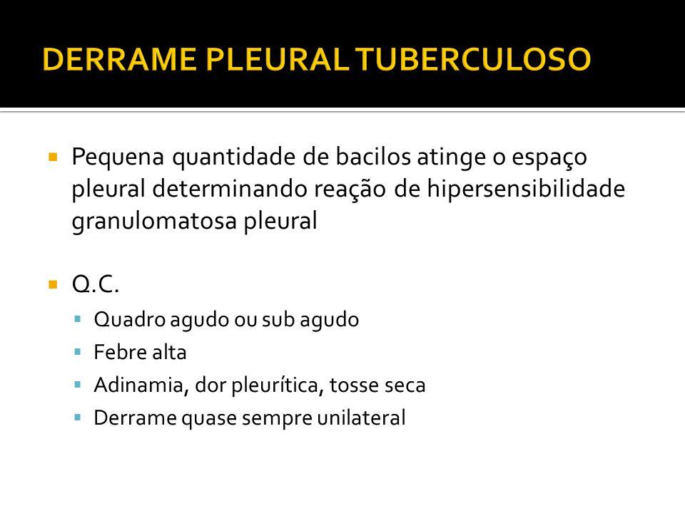  Pequena quantidade de bacilos atinge o espaço pleural determinando reação de hipersensibilidade granulomatosa pleural  Q.C.