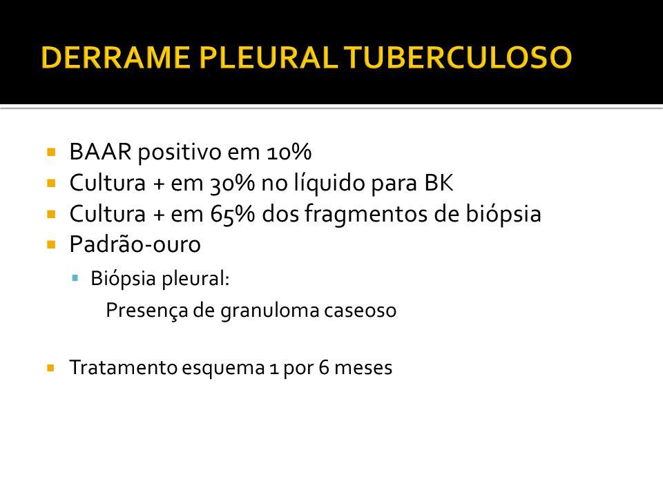  BAAR positivo em 10%  Cultura + em 30% no líquido para BK  Cultura + em 65% dos fragmentos de biópsia  Padrão-ouro  Biópsia pleural: Presença de granuloma caseoso  Tratamento esquema 1 por 6 meses