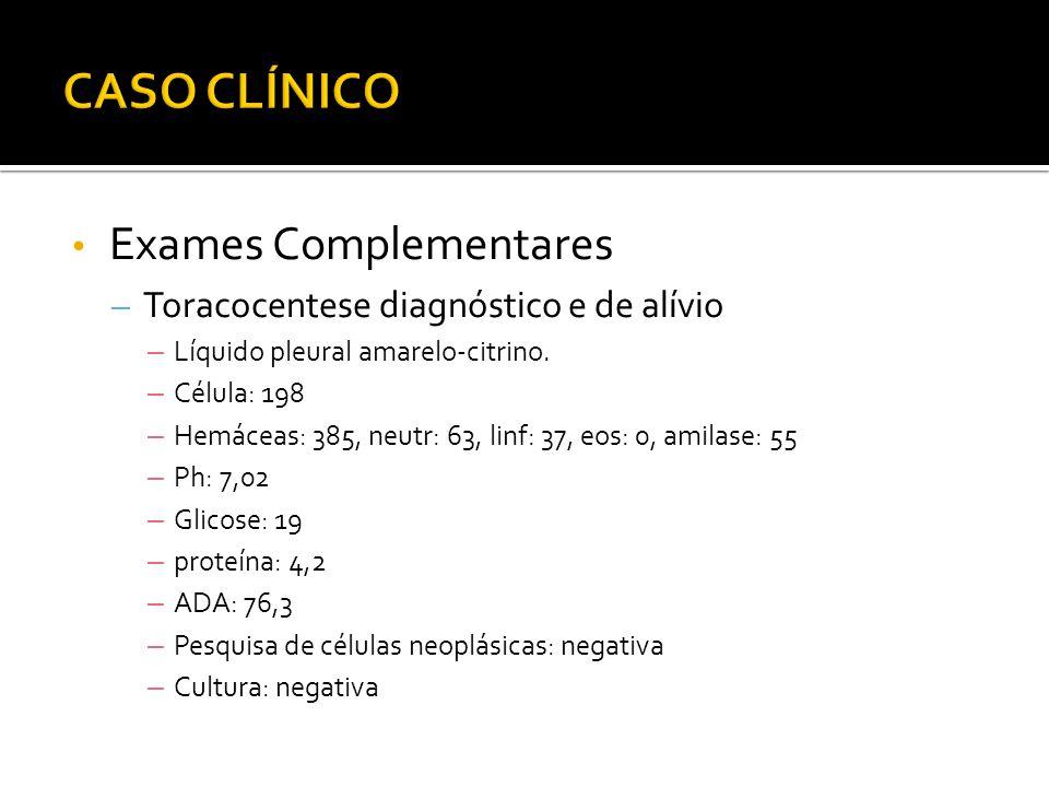 • Exames Complementares – Toracocentese diagnóstico e de alívio – Líquido pleural amarelo-citrino.