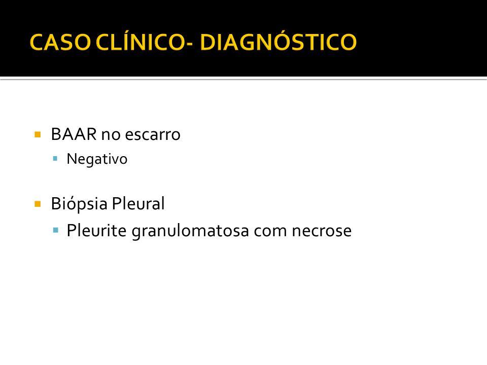  BAAR no escarro  Negativo  Biópsia Pleural  Pleurite granulomatosa com necrose