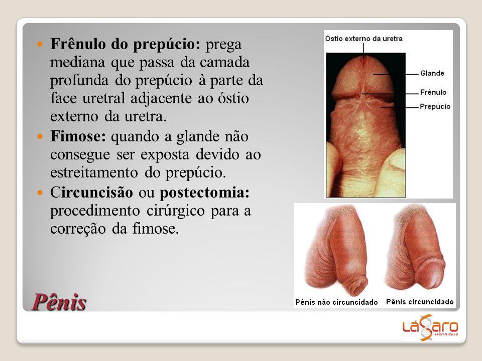 Pênis  Frênulo do prepúcio: prega mediana que passa da camada profunda do prepúcio à parte da face uretral adjacente ao óstio externo da uretra.  Fi