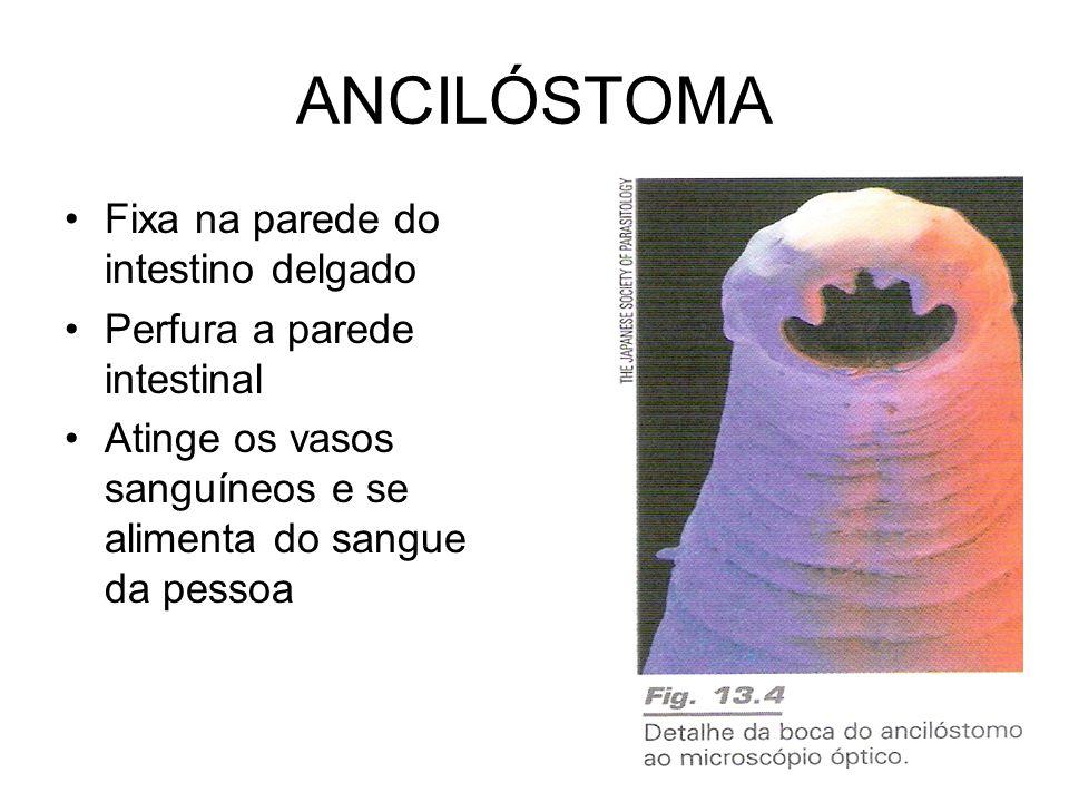 ANCILÓSTOMA •Fixa na parede do intestino delgado •Perfura a parede intestinal •Atinge os vasos sanguíneos e se alimenta do sangue da pessoa
