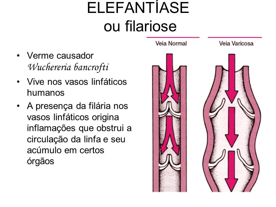 ELEFANTÍASE ou filariose •Verme causador Wuchereria bancrofti •Vive nos vasos linfáticos humanos •A presença da filária nos vasos linfáticos origina i