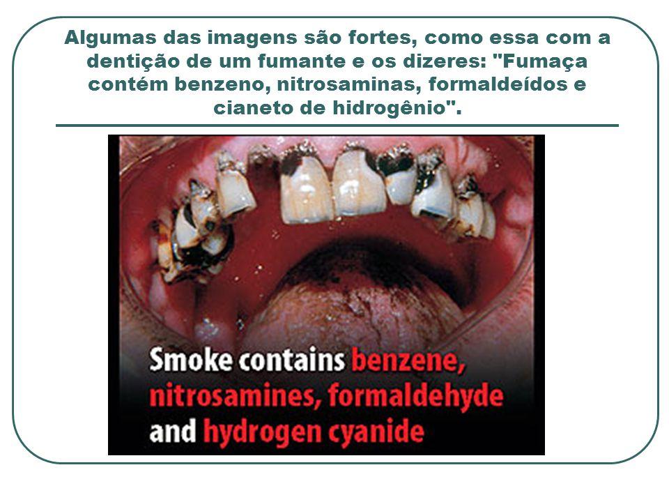 Algumas das imagens são fortes, como essa com a dentição de um fumante e os dizeres: