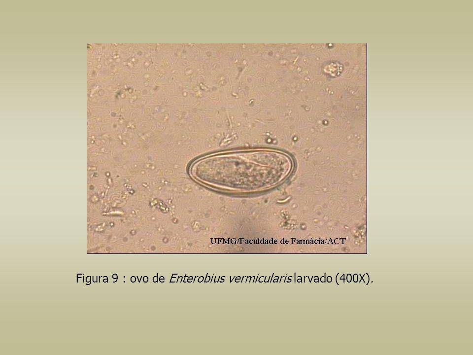 Figura 9 : ovo de Enterobius vermicularis larvado (400X).