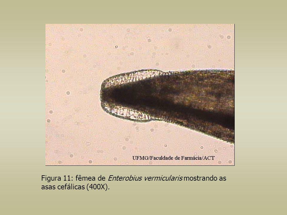 Figura 11: fêmea de Enterobius vermicularis mostrando as asas cefálicas (400X).