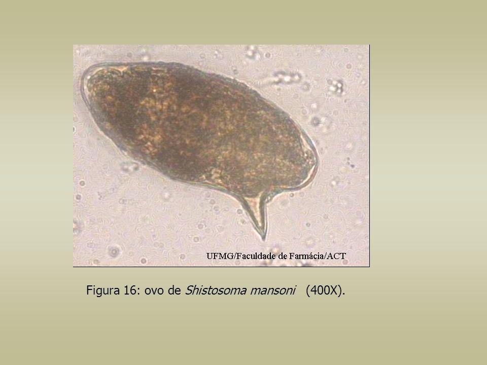 Figura 16: ovo de Shistosoma mansoni (400X).