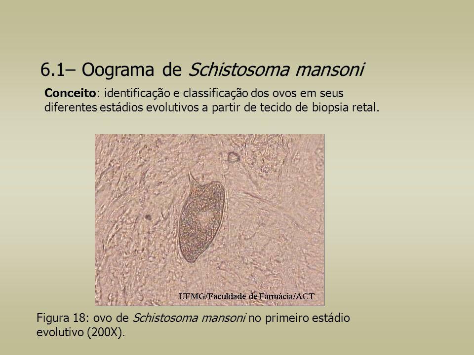 6.1– Oograma de Schistosoma mansoni Figura 18: ovo de Schistosoma mansoni no primeiro estádio evolutivo (200X). Conceito: identificação e classificaçã
