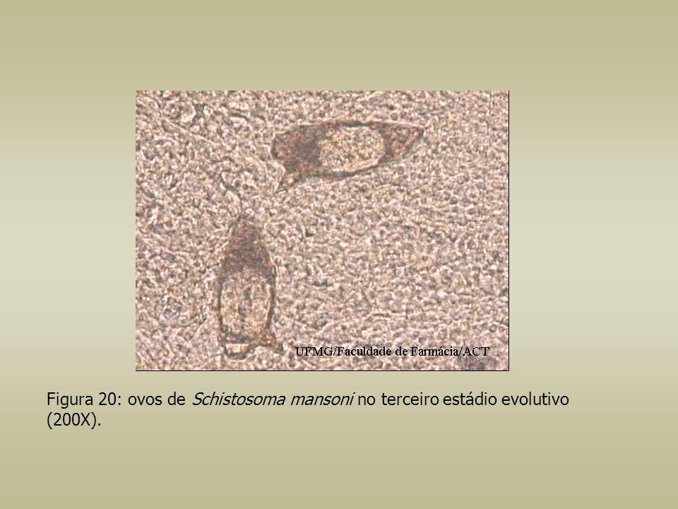 Figura 20: ovos de Schistosoma mansoni no terceiro estádio evolutivo (200X).