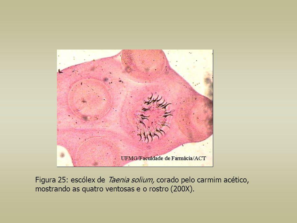 Figura 25: escólex de Taenia solium, corado pelo carmim acético, mostrando as quatro ventosas e o rostro (200X).