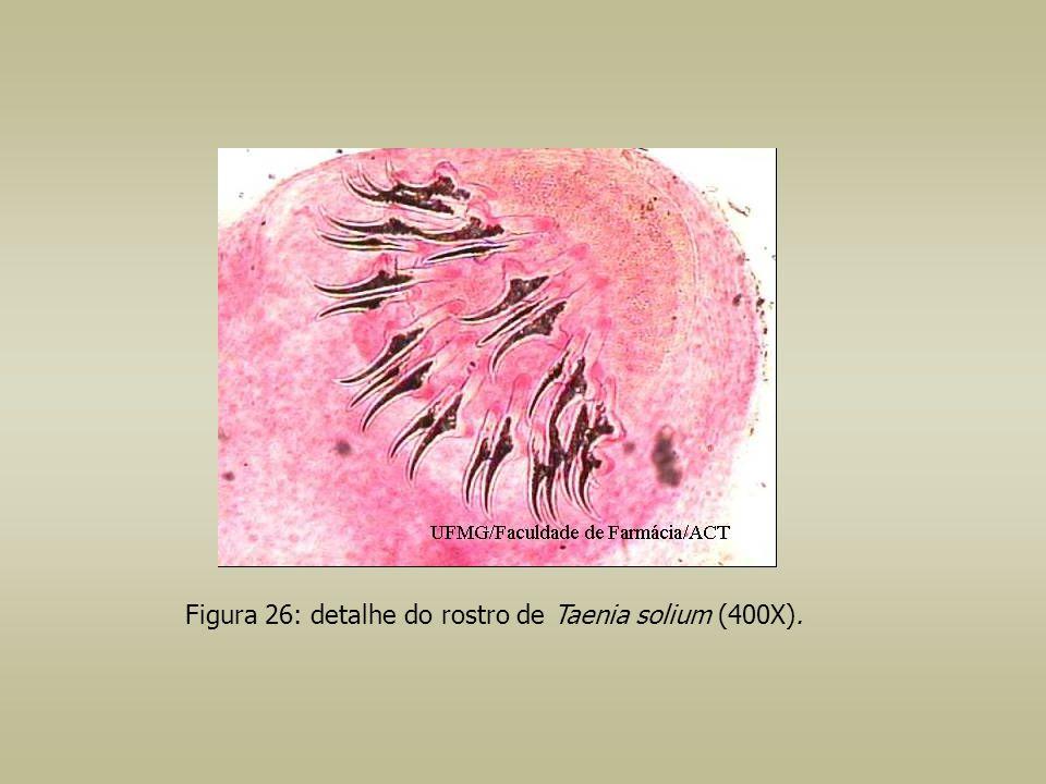 Figura 26: detalhe do rostro de Taenia solium (400X).