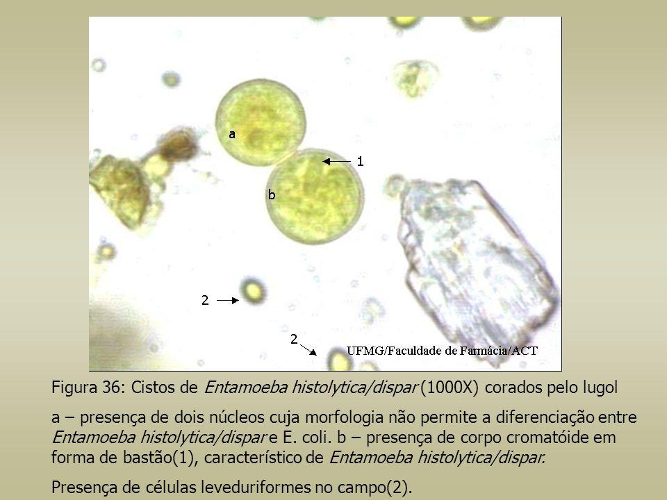 Figura 36: Cistos de Entamoeba histolytica/dispar (1000X) corados pelo lugol a – presença de dois núcleos cuja morfologia não permite a diferenciação