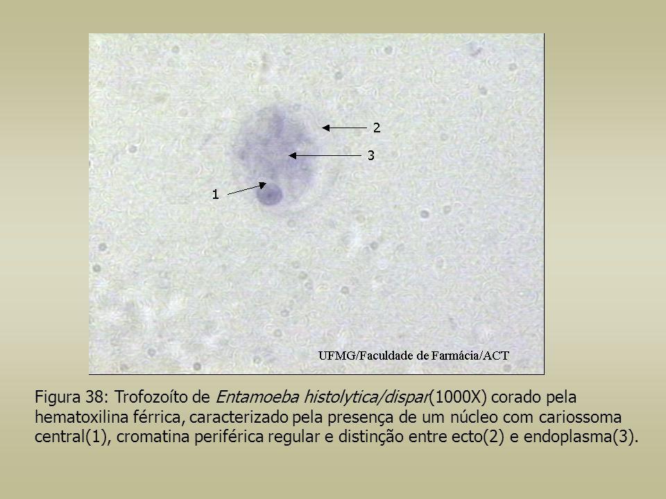 Figura 38: Trofozoíto de Entamoeba histolytica/dispar(1000X) corado pela hematoxilina férrica, caracterizado pela presença de um núcleo com cariossoma