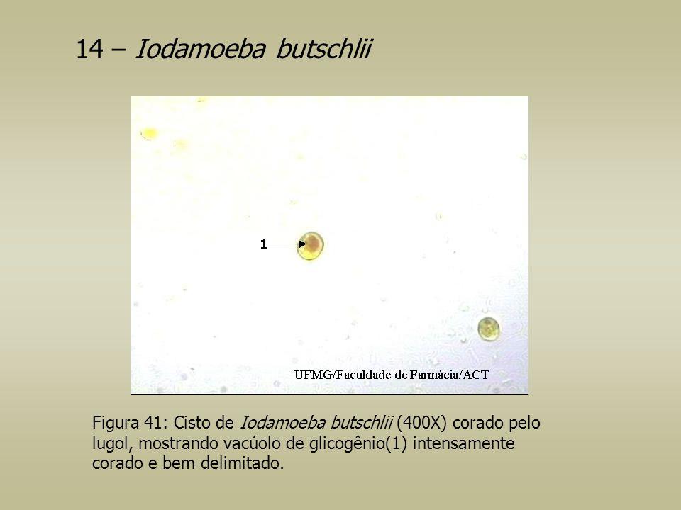 Figura 41: Cisto de Iodamoeba butschlii (400X) corado pelo lugol, mostrando vacúolo de glicogênio(1) intensamente corado e bem delimitado. 14 – Iodamo