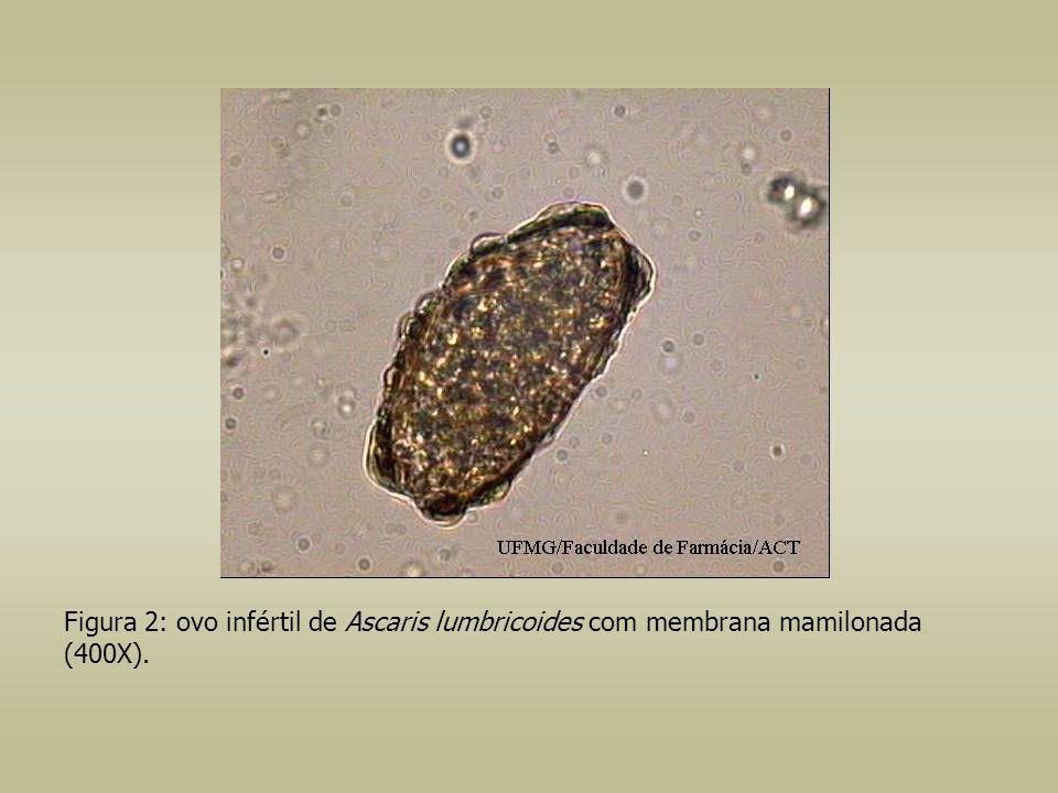 Figura 13: larva de ancilostomídeo, corada pelo lugol, caracterizada pela presença de vestíbulo bucal longo (1000X).