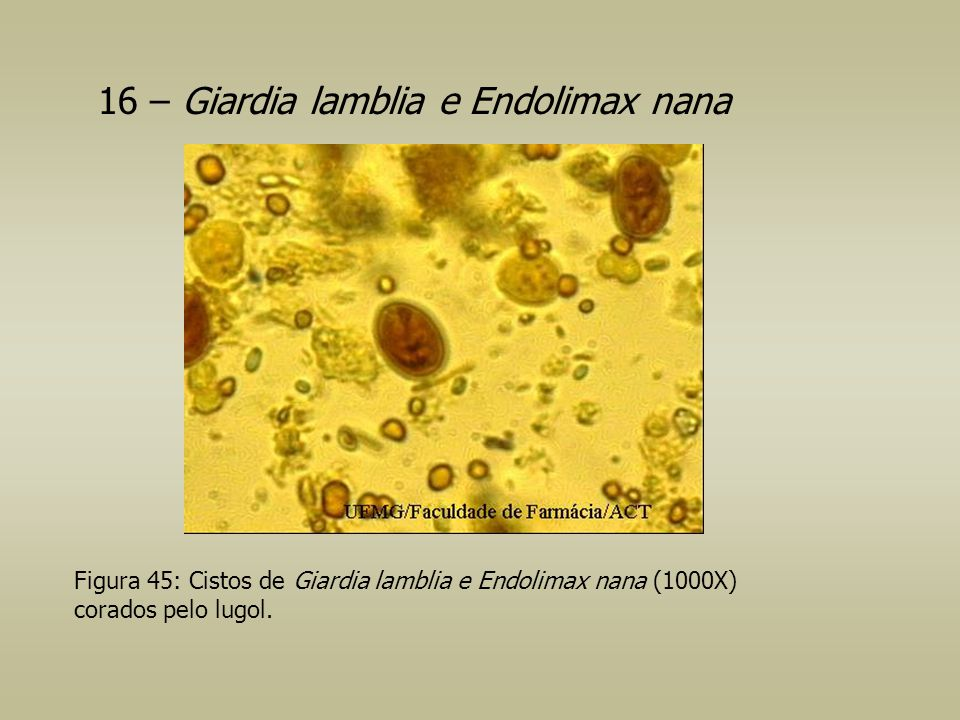 16 – Giardia lamblia e Endolimax nana Figura 45: Cistos de Giardia lamblia e Endolimax nana (1000X) corados pelo lugol.
